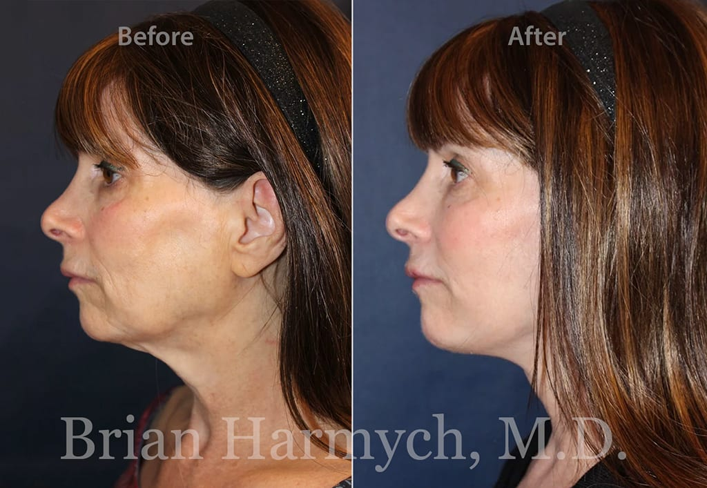 facelift in cleveland plastic surgery 1d