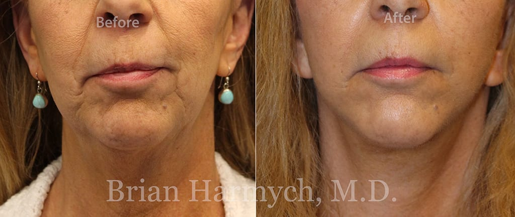 facelift-cleveland-plastic-surgery-harmych