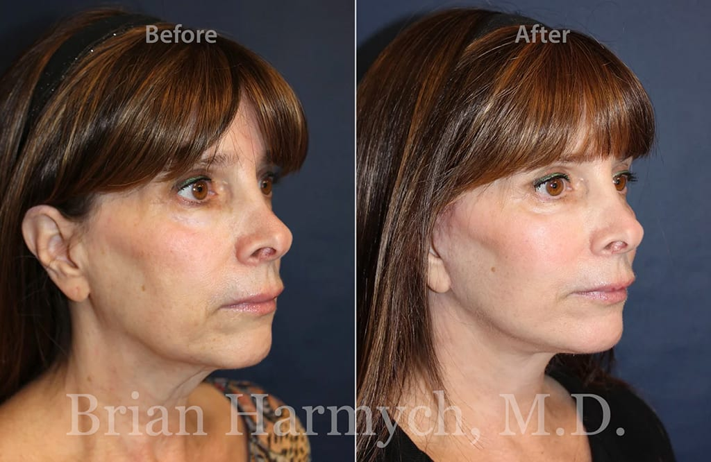 facelift in cleveland plastic surgery 1c
